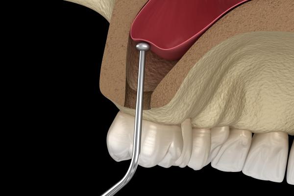Sinus Lift Surgery - Moving sinus membrane. 3D illustration